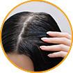 WOW Skin Science Amla Hair Oil