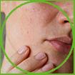 WOW Skin Science Geranium Essential Oil for skin